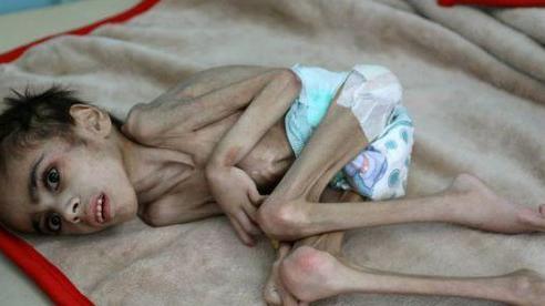 Bé trai Yemen suy dinh dưỡng nặng 7 cân
