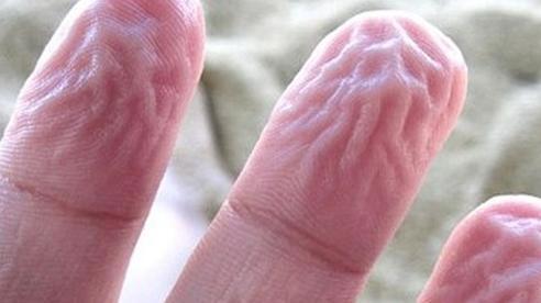 Ngón tay nhăn nheo sau khi bị ngâm vào nước là do đâu?