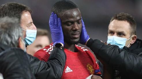 MU gặp họa lớn trước trận đá bù với Burnley