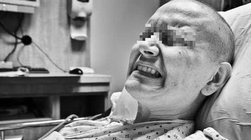1 vạn người/ngày bị ung thư 'gọi tên' ở Trung Quốc: 6 thói quen  hàng ngày áp dụng ngay