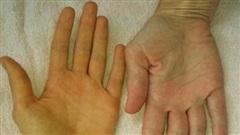 Vàng da có thể là một dấu hiệu của ung thư đường mật