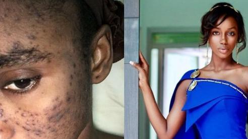 Hoa hậu Guinea đau khổ thất nghiệp 3 năm vì mụn trứng cá