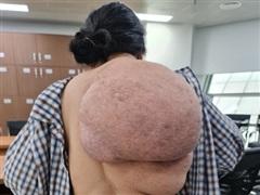 Nữ bệnh nhân gánh khối u khổng lồ dài từ vai xuống tới mông