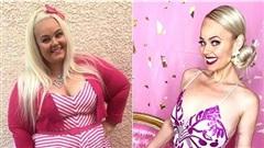 Nàng béo 154kg phẫu thuật cắt bỏ 80% dạ dày, lột xác kinh ngạc để giống búp bê Barbie