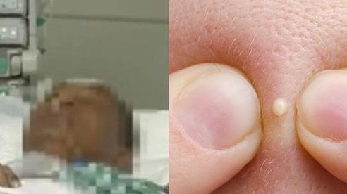 Người đàn ông suýt mất mạng vì nặn mụn trên mặt, bác sĩ đưa ra cảnh báo về thói quen nguy hiểm
