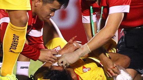 V.League có ca chấn thương nặng, nạn nhân phải khâu... 9 mũi