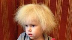 Bé gái sở hữu mái tóc kì lạ khiến mẹ khổ sở vì không thể chải theo ý muốn, diện mạo khi lớn lên ai cũng bất ngờ