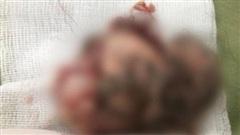 Bé gái 7 tuổi có khối u quái chứa đầy tóc, răng, xương hàm trong ổ bụng