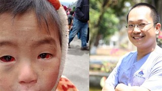 Tấm ảnh cháu bé miền núi phía Bắc 'bị xuất huyết dưới kết mạc' do thời tiết rét lạnh đỏ ngầu cả 2 mắt: BS chuyên khoa Mắt nói sự thật về nguyên nhân