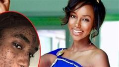 Sản phẩm chăm sóc da mặt đã hủy hoại làn da của một cựu hoa hậu, suốt 3 năm không thể kí hợp đồng với công ty nào