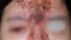 Nâng mũi bằng filler tại một spa ở TP.HCM, cô gái 24 tuổi giảm thị lực, mặt sưng tấy chảy dịch khủng khiếp