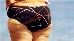 Nữ giới bắt đầu lão hóa sẽ có '3 xệ, 2 to và 1 nặng mùi' trên cơ thể, nếu không có cái nào thì bạn vẫn còn trẻ chán!