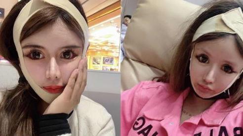 Cuồng thẩm mỹ, nữ sinh trung học 'đập mặt xây lại' hơn 100 lần trong 3 năm: Bất chấp tai tiếng để vươn tới ước mơ làm idol