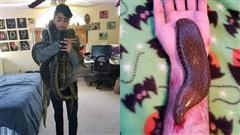 Kinh dị thanh niên 22 tuổi cho đỉa khổng lồ hút máu, nuôi rắn rết làm thú cưng