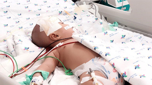 Bé 1 tuổi hôn mê vì viêm màng não mủ: Dấu hiệu cha mẹ cần nhớ