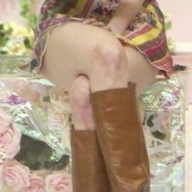 Đôi chân nhiều vết bầm tím của các thành viên Twice khiến người hâm mộ không khỏi xót xa.