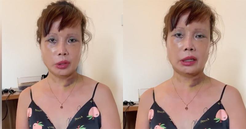 Cô dâu 63 tuổi cho biết sẽ tiếp tục làm ngực...