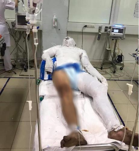 Anh S. bị bỏng nặng đang điều trị tại bệnh viện