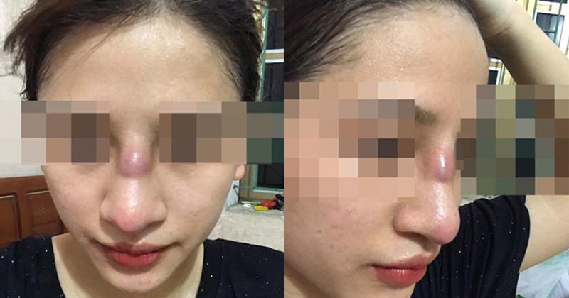 Cô gái suýt thủng mũi sau khi nâng mũi ở spa. Ảnh: VTV.