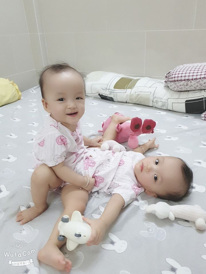Cặp song sinh dính liền Trúc Nhi - Diệu Nhi trước ngày phẫu thuật.