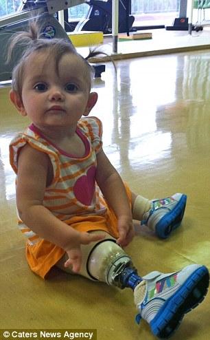 Con gái sinh ra với dị tật bẩm sinh, mẹ quyết định cưa chân đứa trẻ và 3 năm sau nhìn lại, ai cũng ngỡ ngàng với hình ảnh của em 4
