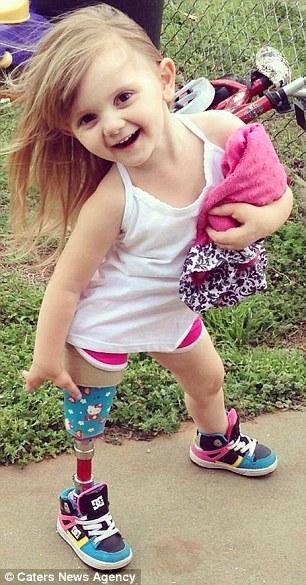 Con gái sinh ra với dị tật bẩm sinh, mẹ quyết định cưa chân đứa trẻ và 3 năm sau nhìn lại, ai cũng ngỡ ngàng với hình ảnh của em 8