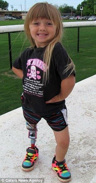 Con gái sinh ra với dị tật bẩm sinh, mẹ quyết định cưa chân đứa trẻ và 3 năm sau nhìn lại, ai cũng ngỡ ngàng với hình ảnh của em 6