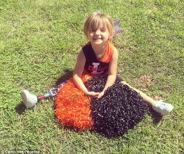 Con gái sinh ra với dị tật bẩm sinh, mẹ quyết định cưa chân đứa trẻ và 3 năm sau nhìn lại, ai cũng ngỡ ngàng với hình ảnh của em 9