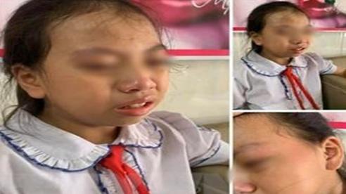 Hà Giang: Cô giáo tát học sinh trên lớp bị tạm đình chỉ giảng dạy