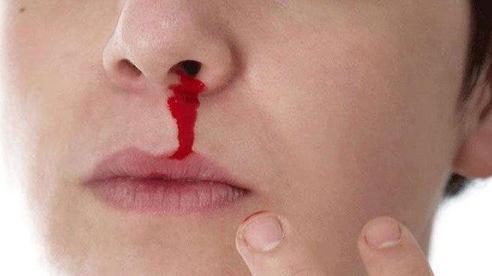 Cứ 'quan hệ' với bạn gái là chảy máu mũi hơn 30 phút vẫn không thể cầm máu, chàng trai 24 tuổi cảm thấy tự hào nhưng bác sĩ bày tỏ lo ngại