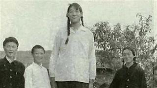 Cô gái khổng lồ mỗi bữa ăn 200 gram gạo, thời thiếu niên cao trên 2m nhưng qua đời ở tuổi 18 bởi chính nguyên nhân gây ra chiều cao khủng