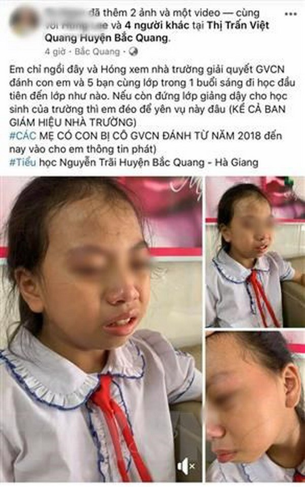 Hình ảnh nữ học sinh lớp 4 Trường Tiểu học Nguyễn Trãi, huyện Bắc Quang (Hà Giang) bị giáo viên tát vào má được người nhà học sinh đưa lên mạng xã hội. (Ảnh: TTXVN)