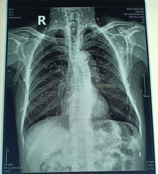 Hình ảnh chụp X-quang nam bệnh nhân 70 tuổi mắc bệnh kén sán toàn thân. Ảnh: TTYT huyện Chiêm Hoá cung cấp.