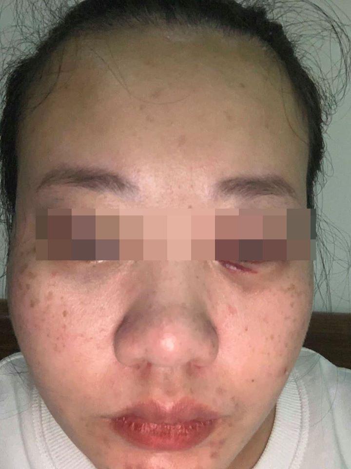 Người mẹ trẻ bất đắc dĩ chia sẻ câu chuyện và bằng chứng bị chồng đánh