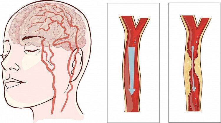 Khi bị nhồi máu não, tình trạng bệnh sẽ diễn biến nhanh, nếu bỏ qua thời gian vàng điều trị thì tiên lượng rất xấu, sẽ để lại di chứng nặng nề.