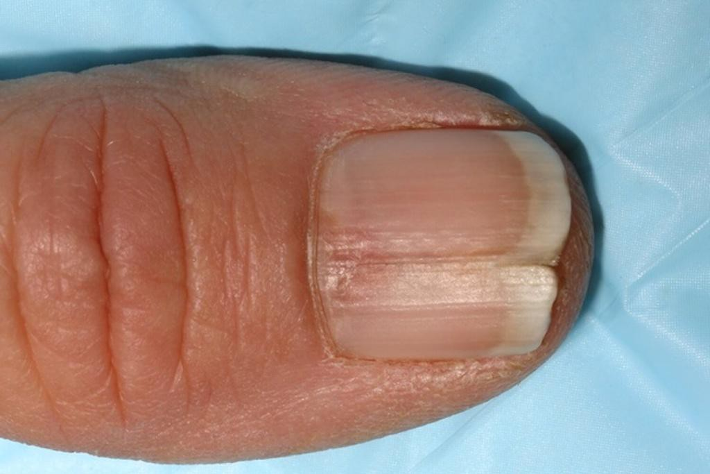 Móng tay gãy, nứt đôi có thể là dấu hiệu của bệnh về tuyến giáp.