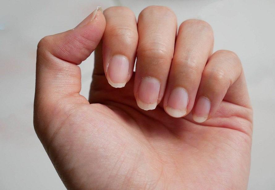 Sự bất thường ở móng tay có thể là dấu hiệu nhận biết một số bệnh nguy hiểm. (Ảnh minh họa)