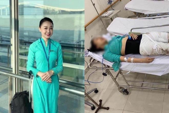 Chị Hường bị thương tật vĩnh viễn 79%.