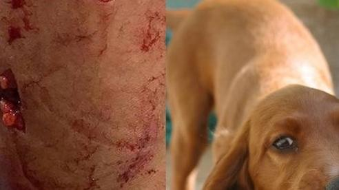 57 người tử vong vì bệnh dại và cách xử trí nếu bị chó cắn