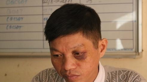 Bắc Kạn: Khởi tố người đàn ông điều khiển xe máy đâm cảnh sát giao thông