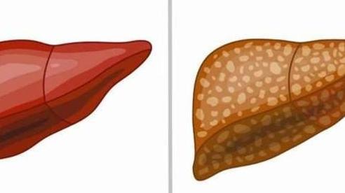 Những ai có nguy cơ bị gan nhiễm mỡ?