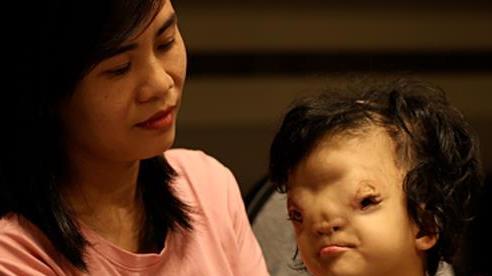 Mẹ của cô bé có khuôn mặt biến dạng ở Quảng Bình gửi con để đi giúp người dân chống lũ