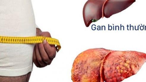 Những điều bạn cần biết về bệnh gan nhiễm mỡ?
