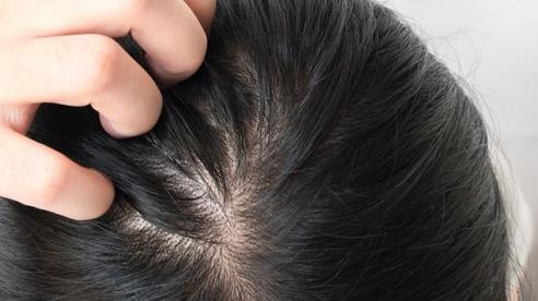 Bạn đã biết tại sao tóc ngày càng mỏng?