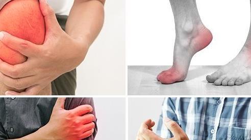 Thuốc giảm đau, viêm xương khớp: Cần đề phòng các bất lợi khi dùng