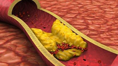 Ngày càng nhiều người trẻ bị đột tử do tắc mạch máu não: 2 món ăn cần tránh xa và 9 thực phẩm nên ăn thường xuyên để làm sạch mạch máu não