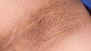Không phân biệt nam hay nữ, nếu trên cổ xuất hiện 3 điểm bất thường thì chứng tỏ tế bào ung thư đang âm thầm tìm đến