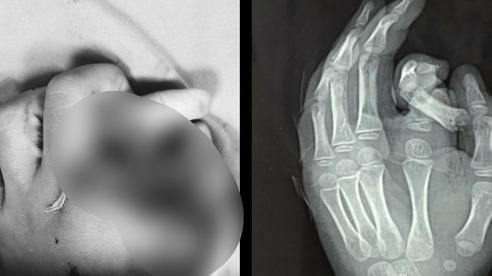 Hà Nội: Đút tay vào máy giặt đang hoạt động, bé trai 6 tuổi bị đứt rời ngón tay