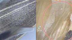 Nhiều người cứ thắc mắc vì sao ăn hạt hướng dương thường gây nhứa cổ và ho, hóa ra là do thành phần có thể loại bỏ trước khi ăn này