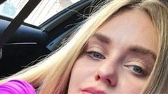 Cựu nữ hoàng sắc đẹp bị bệnh viện sa thải vì 'quá xinh đẹp'